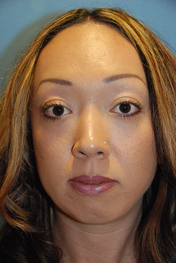 Before Chin Implant for a Small Chin and Filler Injections Under the Eyelid For Hollow Lower Eyelids and Dark Circles