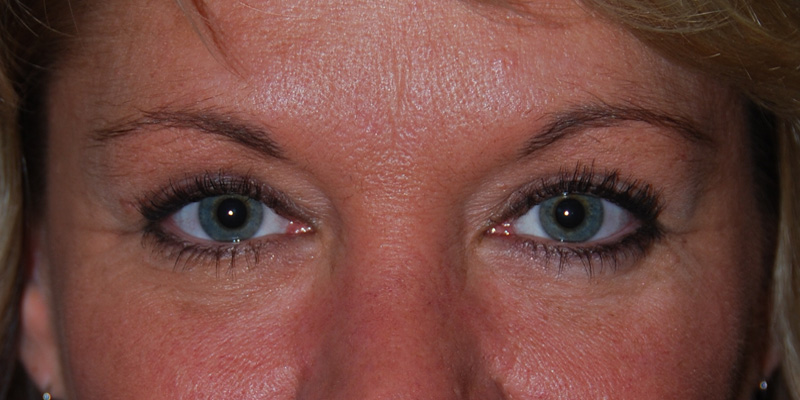 Eye Lift Blepharoplasty After