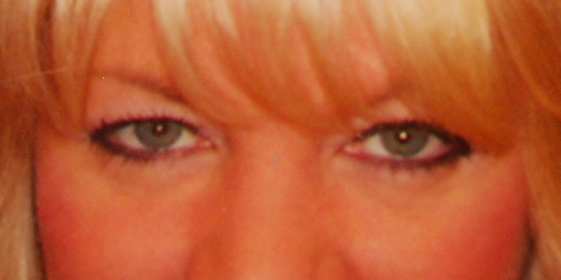 Eye Lift Blepharoplasty Before