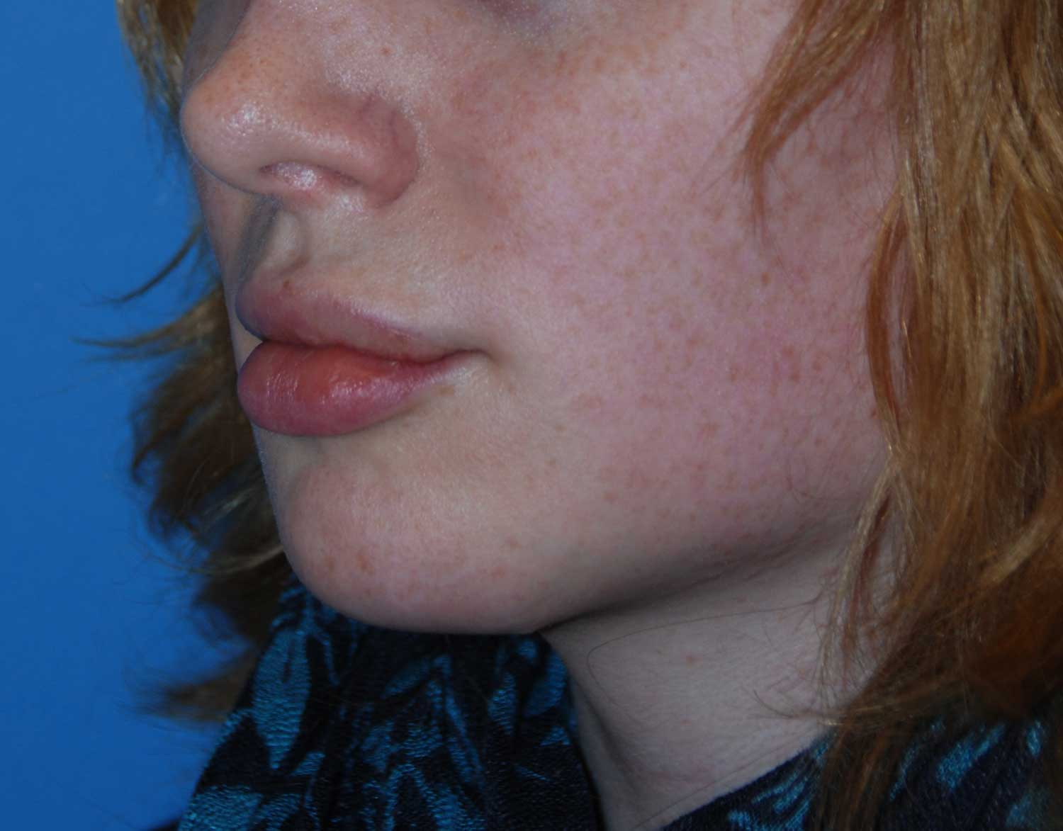 Oblique View After Chin Reduction / Re-shaping and Lip Enhancement with a V-Y Advancement Flaps