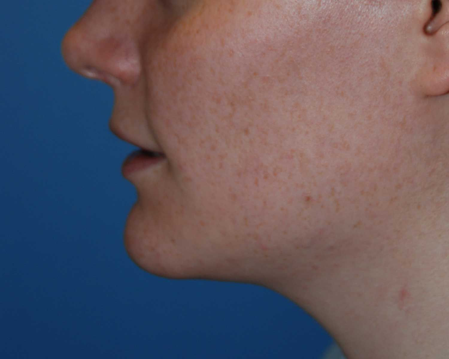 Before Chin Reduction / Re-shaping and Lip Enhancement with a V-Y Advancement Flaps