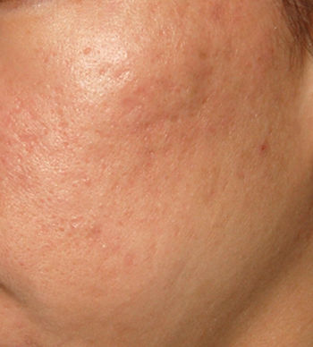 Acne Scar Treatment Before & After Photo