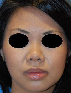 Asian Rhinoplasty Before & After Photo