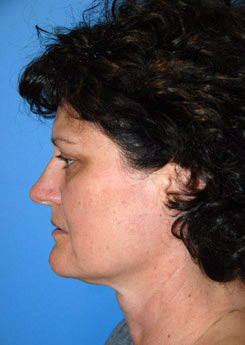 Cheek Implant Before & After Photo