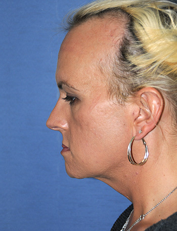 Chin Implant Before & After Photo