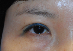 Eyelift Before & After Photo