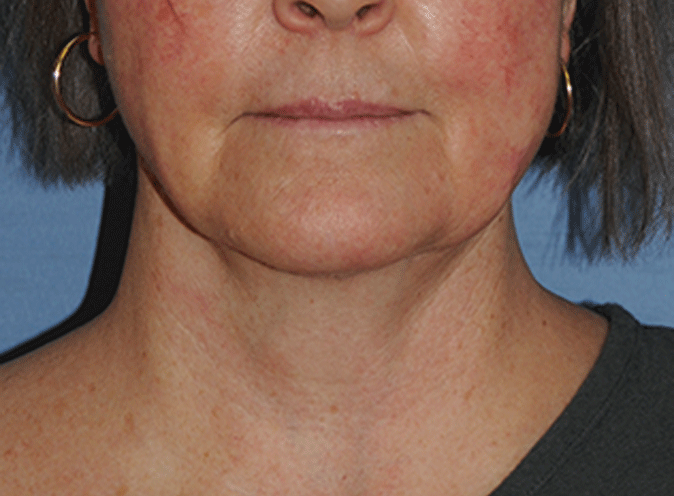 Facelift Before & After Photo