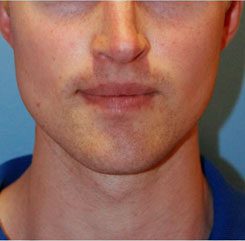 Jaw Implants Before & After Photo