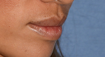 Lip Injection Before & After Photo