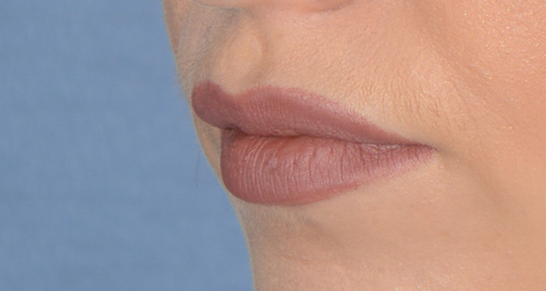 Lip Augmentation / Injection Before & After Photo