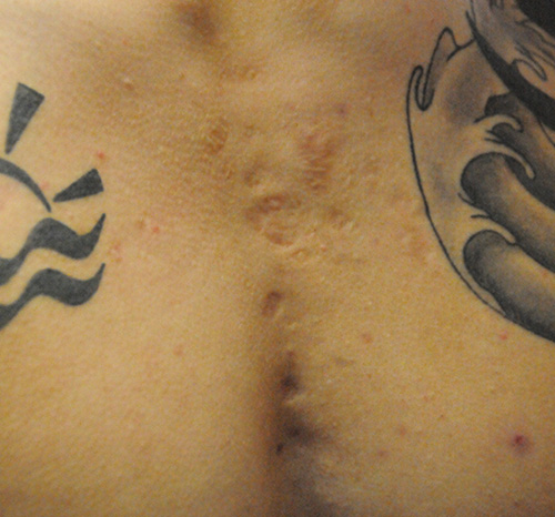 Scar Revision Before & After Photo