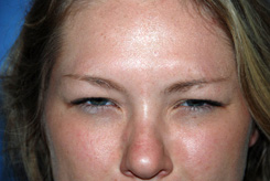 Botox® Before & After Photo