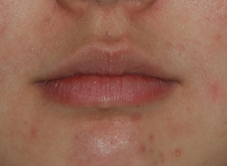 Facial Fillers Before & After Photo
