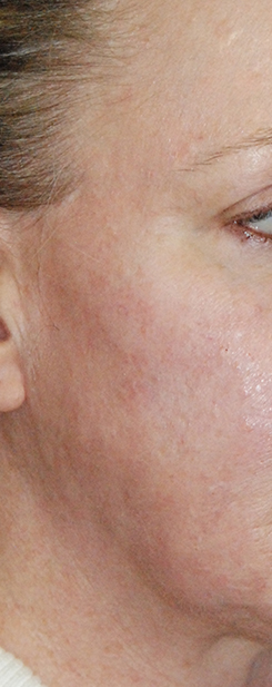 Laser Resurfacing Before & After Photo