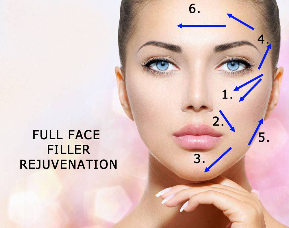 Full Face Rejuvenation with Facial Fillers by bellevue | seattle's dr. philip young of aesthetic facial plastic surgery