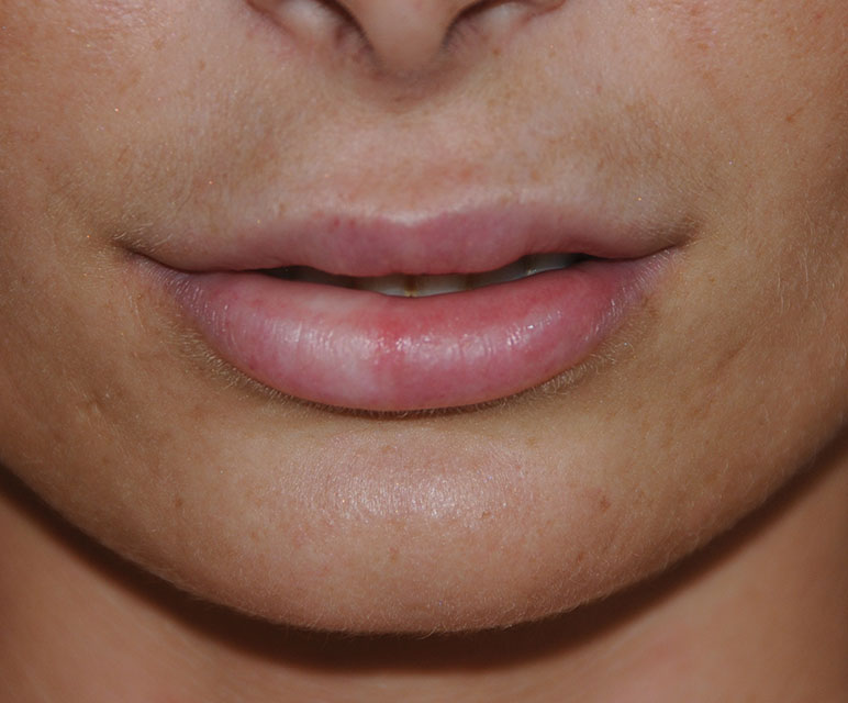 Lip Filler Injections After with Restylane®