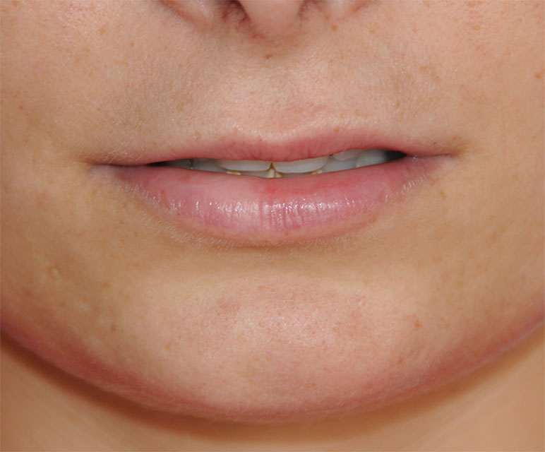 Lip Filler Injections Before with Restylane®