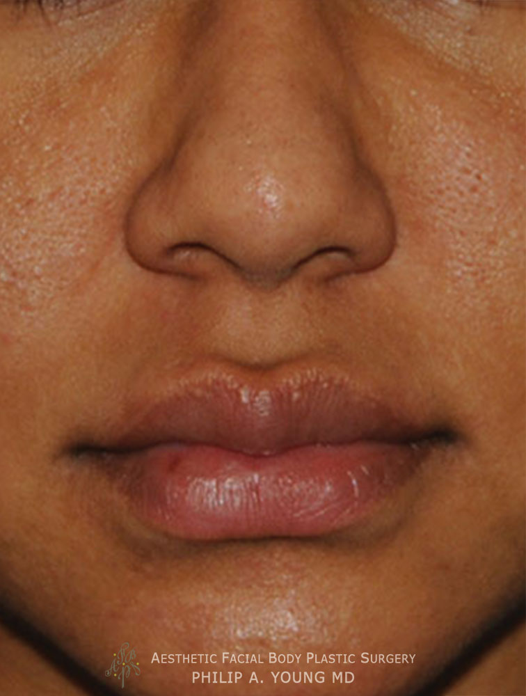 After Upper Corner of the Liplift and Right Upper Mole Laser Removal Close Up