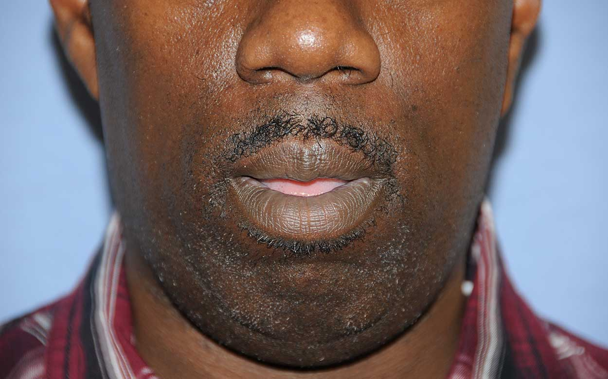 lip thinning reduction for an african black american after image