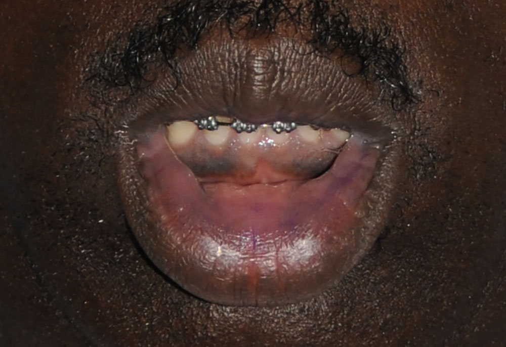 lip thinning reduction for an african black american before image