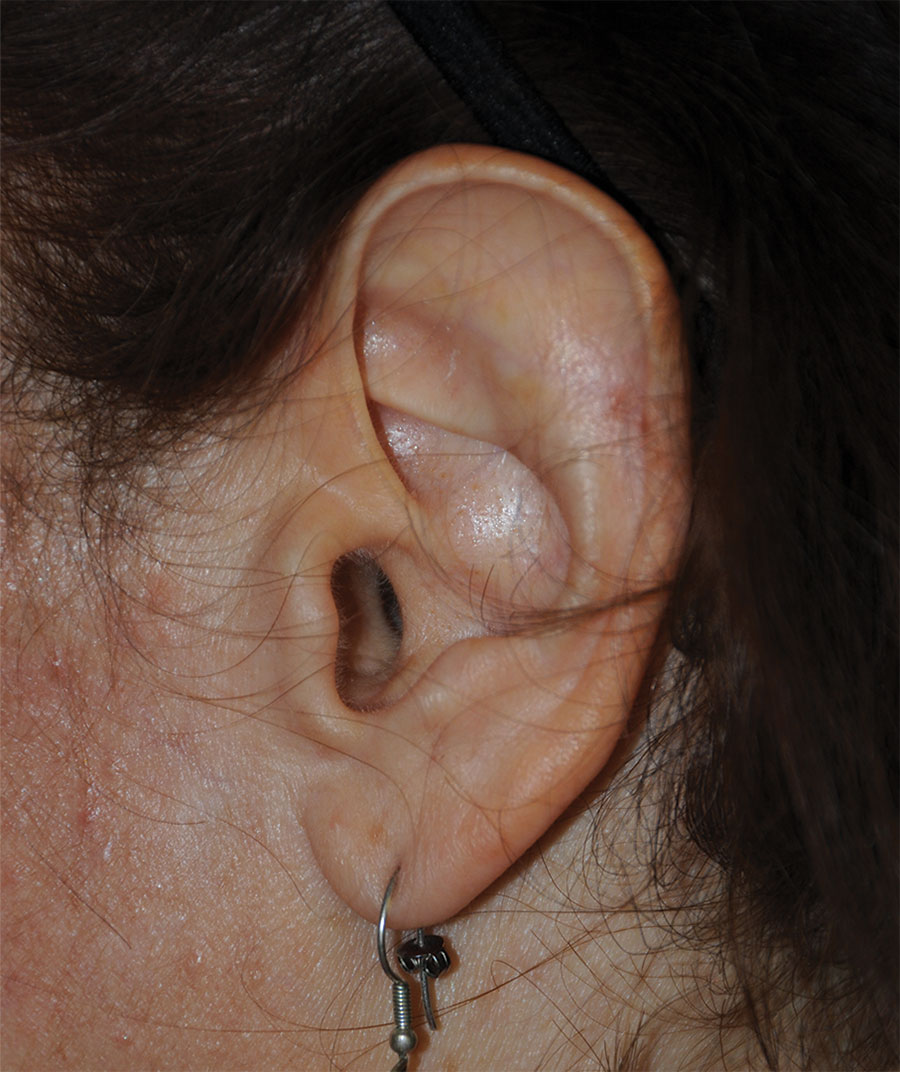 Macrotia Large Ear Reduction Otoplasty Surgery Before Left Side Profile View for this 40's Caucasian Brunette Female Female From Kitsap County, WA