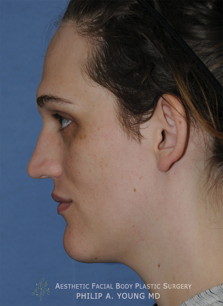 Before Transgender Facial Feminization Otoplasty & Chin Reduction Procedure Side View