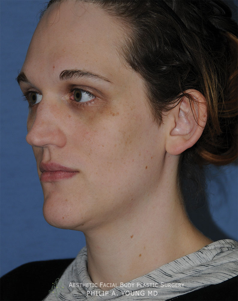 Before Transgender Facial Feminization Otoplasty & Chin Reduction Procedure Oblique Before View