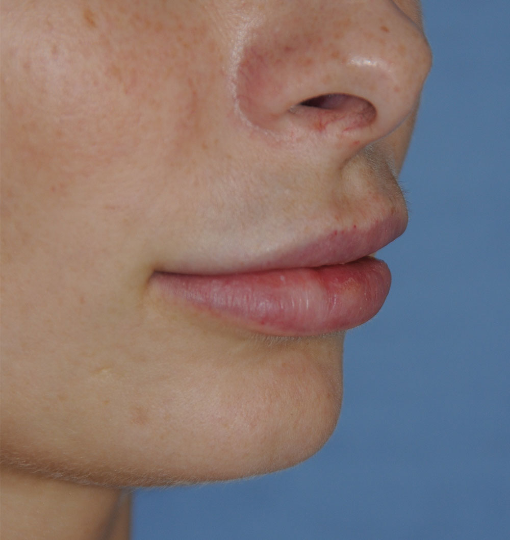 After PermaLip Silicone Lip Implants Augmentation Oblique View