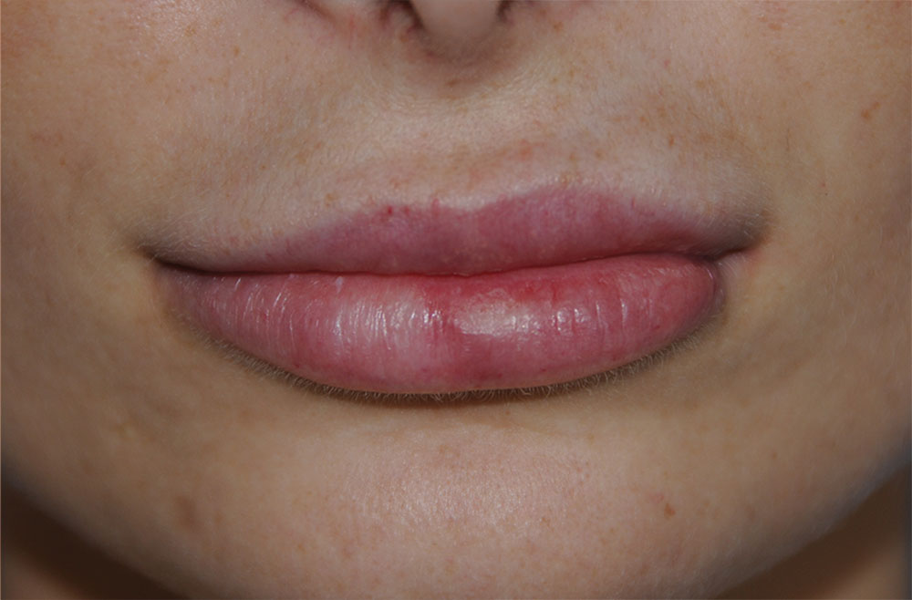 After PermaLip Silicone Lip Implants Augmentation Front View