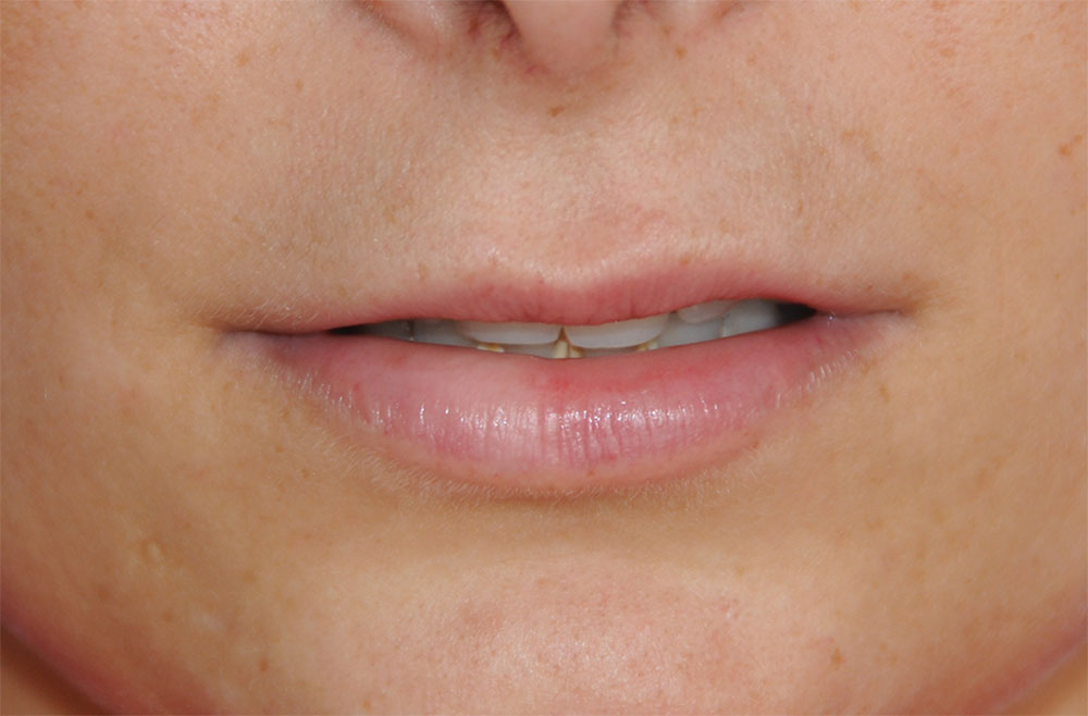 Before PermaLip Silicone Lip Implants Augmentation Front View