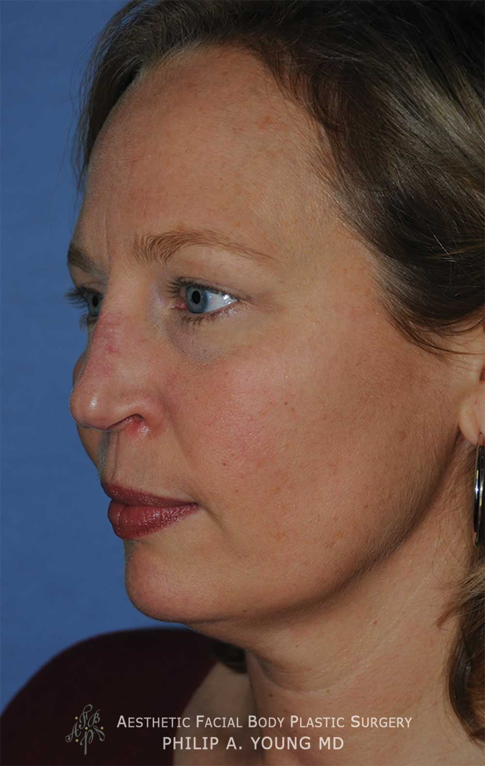 Before Revision Rhinoplasty for Crooked Tip, Crooked Nasal Bridge, Nose Bridge Dorsal Irregularities, Hook & Droopy Nasal Tip, Retracted Alae Nostrils Left Oblique View.