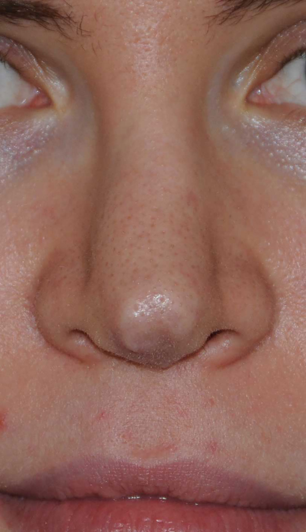 Revision Rhinoplasty for Droopy Tip, Tip Irregularities, Nasal Bridge Bump, Narrowed Right more than Left Nasal Airway, Collapsing Nostrils, and Crooked Nose