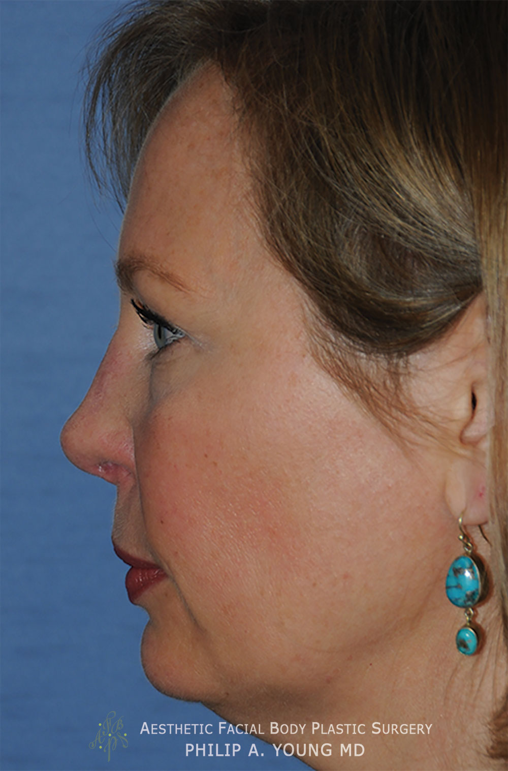 After Revision Rhinoplasty for Crooked Tip, Crooked Nasal Bridge, Nose Bridge Dorsal Irregularities, Hook & Droopy Nasal Tip, Retracted Alae Nostrils Left Side View.
