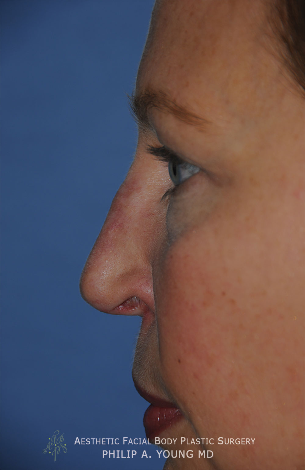 Before Revision Rhinoplasty for Crooked Tip, Crooked Nasal Bridge, Nose Bridge Dorsal Irregularities, Hook & Droopy Nasal Tip, Retracted Alae Nostrils Left Side Close Up View.