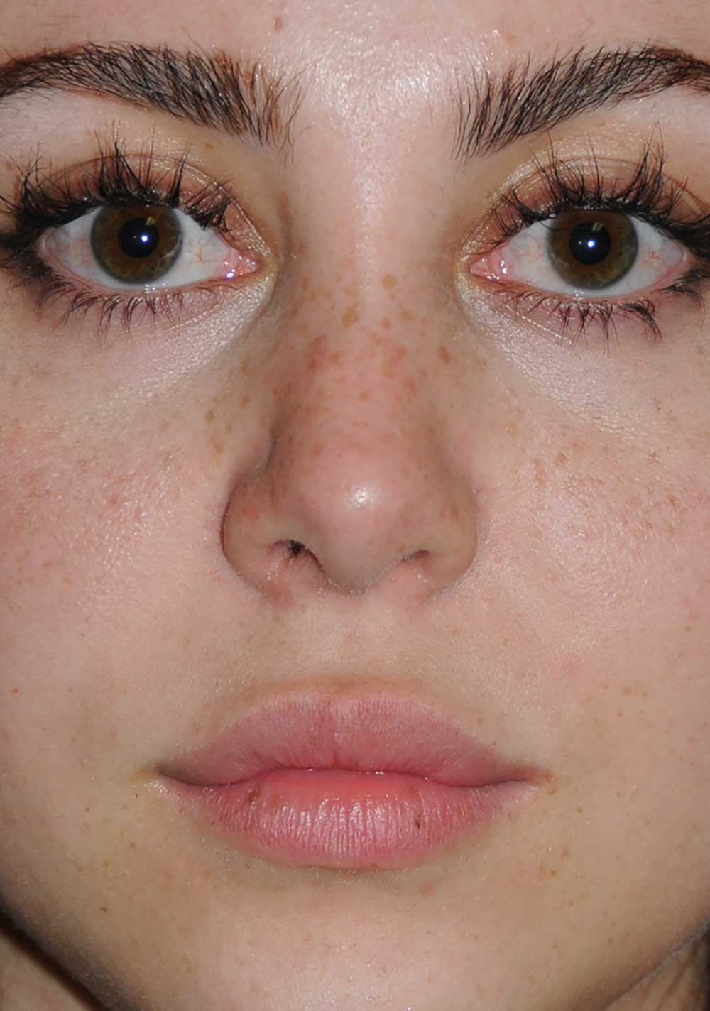 Rhinoplasty for a Bulbous Nasal Tip, Prominent Nasal Bridge, Short Nose / Columella and Lip Fat Transfer for Small Thin Lateral Upper Outer Lips After Close Up View