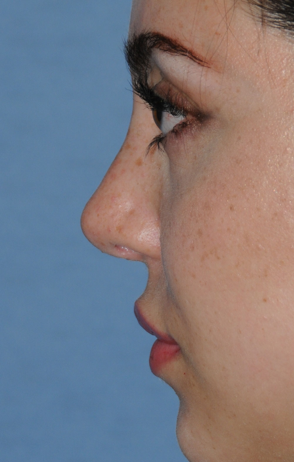 Rhinoplasty for a Bulbous Nasal Tip, Prominent Nasal Bridge, Short Nose / Columella and Lip Fat Transfer for Small Thin Lateral Upper Outer Lips After Left Profile Close Up View