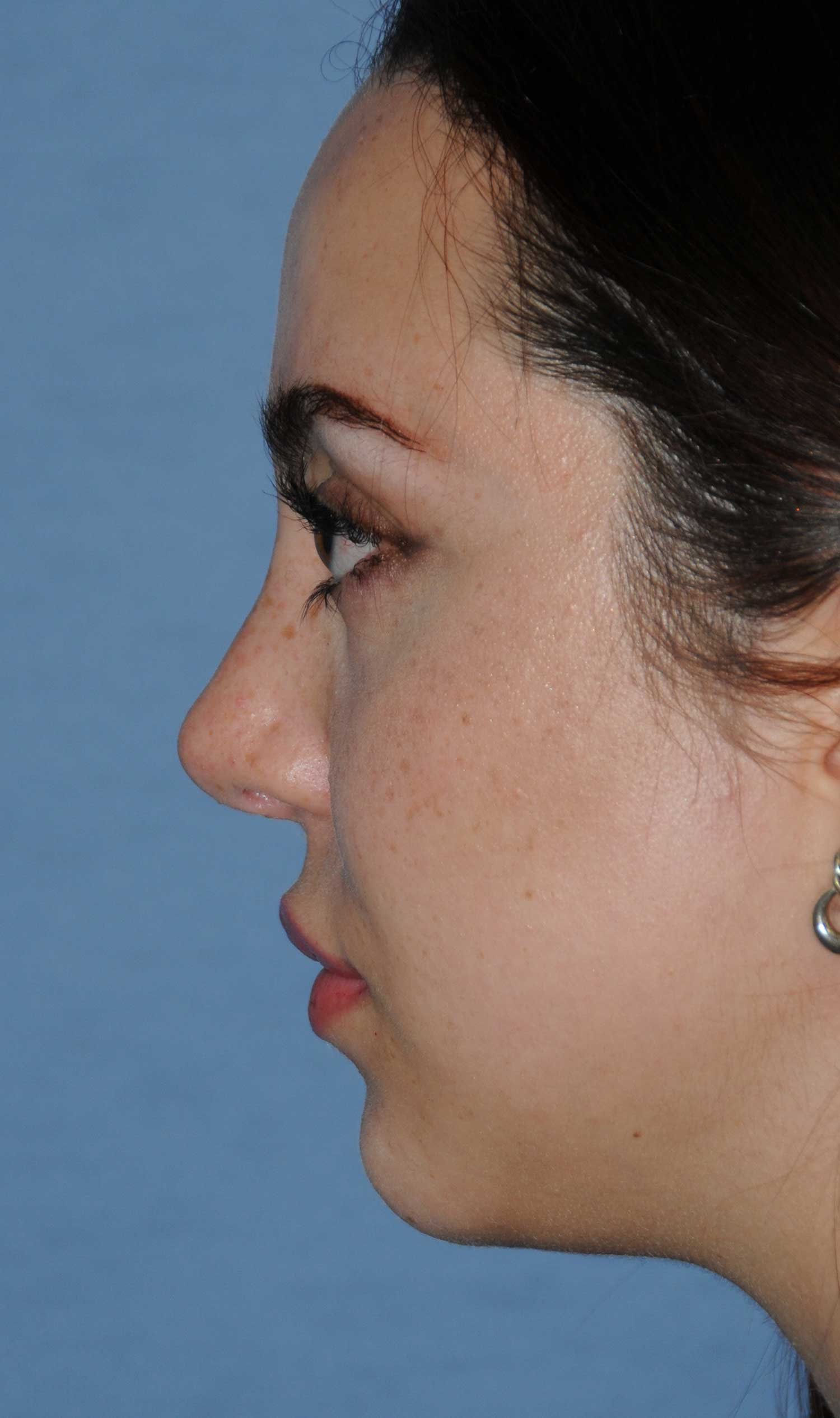 Rhinoplasty for a Bulbous Nasal Tip, Prominent Nasal Bridge, Short Nose / Columella and Lip Fat Transfer for Small Thin Lateral Upper Outer Lips After Left Profile View