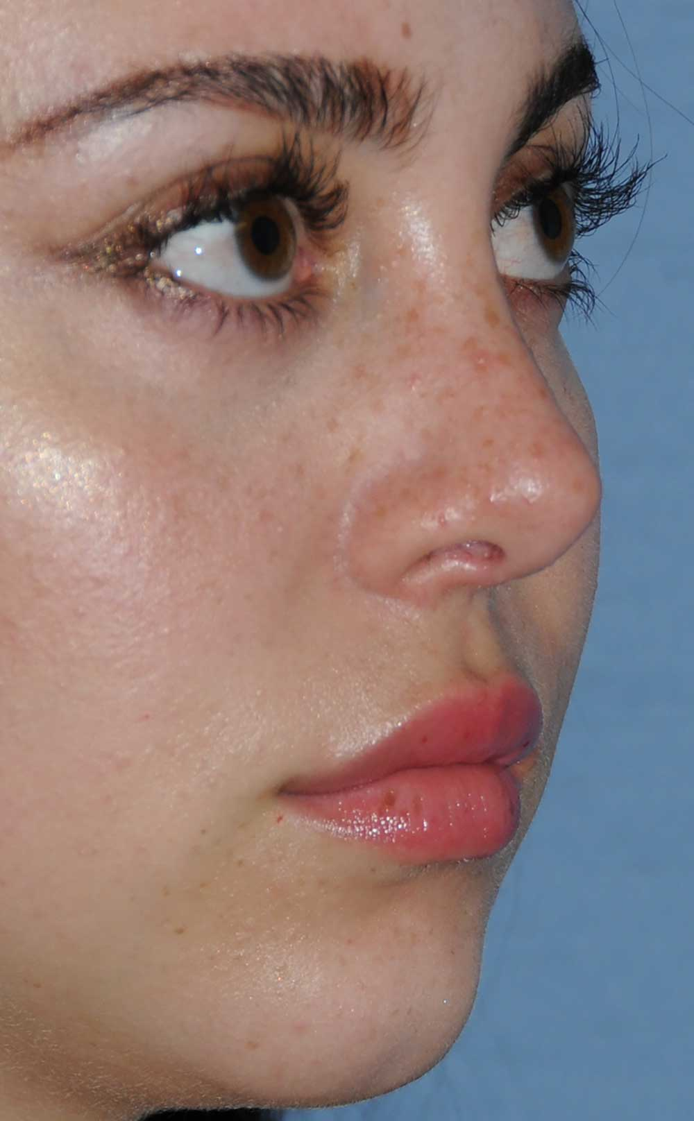 Rhinoplasty for a Bulbous Nasal Tip, Prominent Nasal Bridge, Short Nose / Columella and Lip Fat Transfer for Small Thin Lateral Upper Outer Lips After Right Oblique View