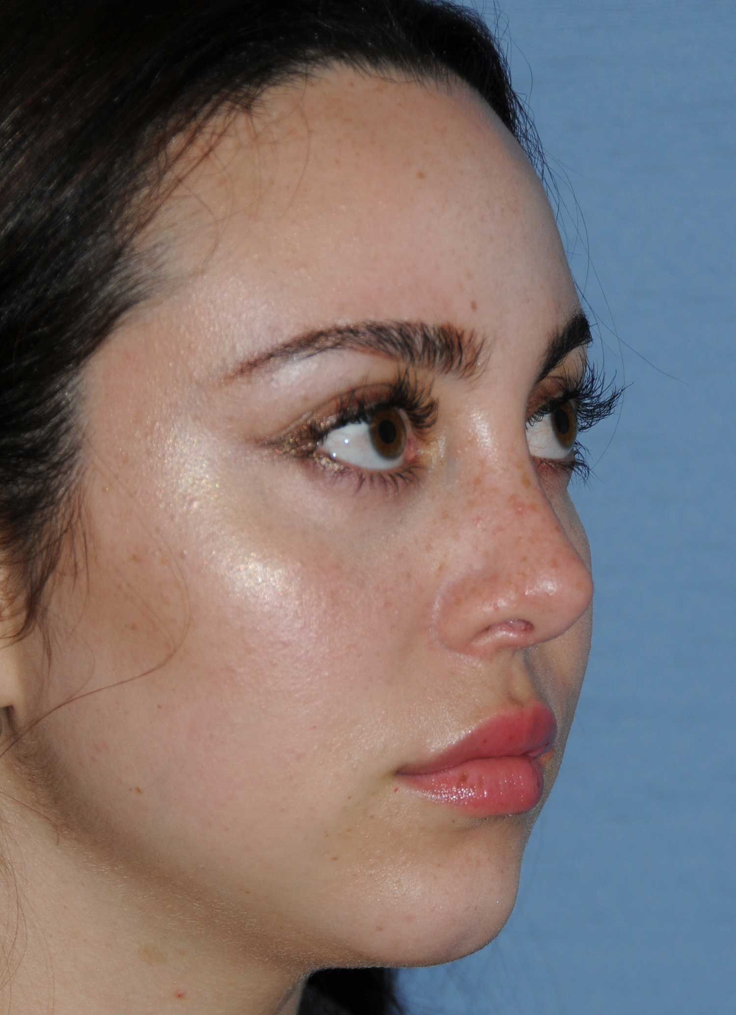 Rhinoplasty for a Bulbous Nasal Tip, Prominent Nasal Bridge, Short Nose / Columella and Lip Fat Transfer for Small Thin Lateral Upper Outer Lips After Right Oblique Close Up View