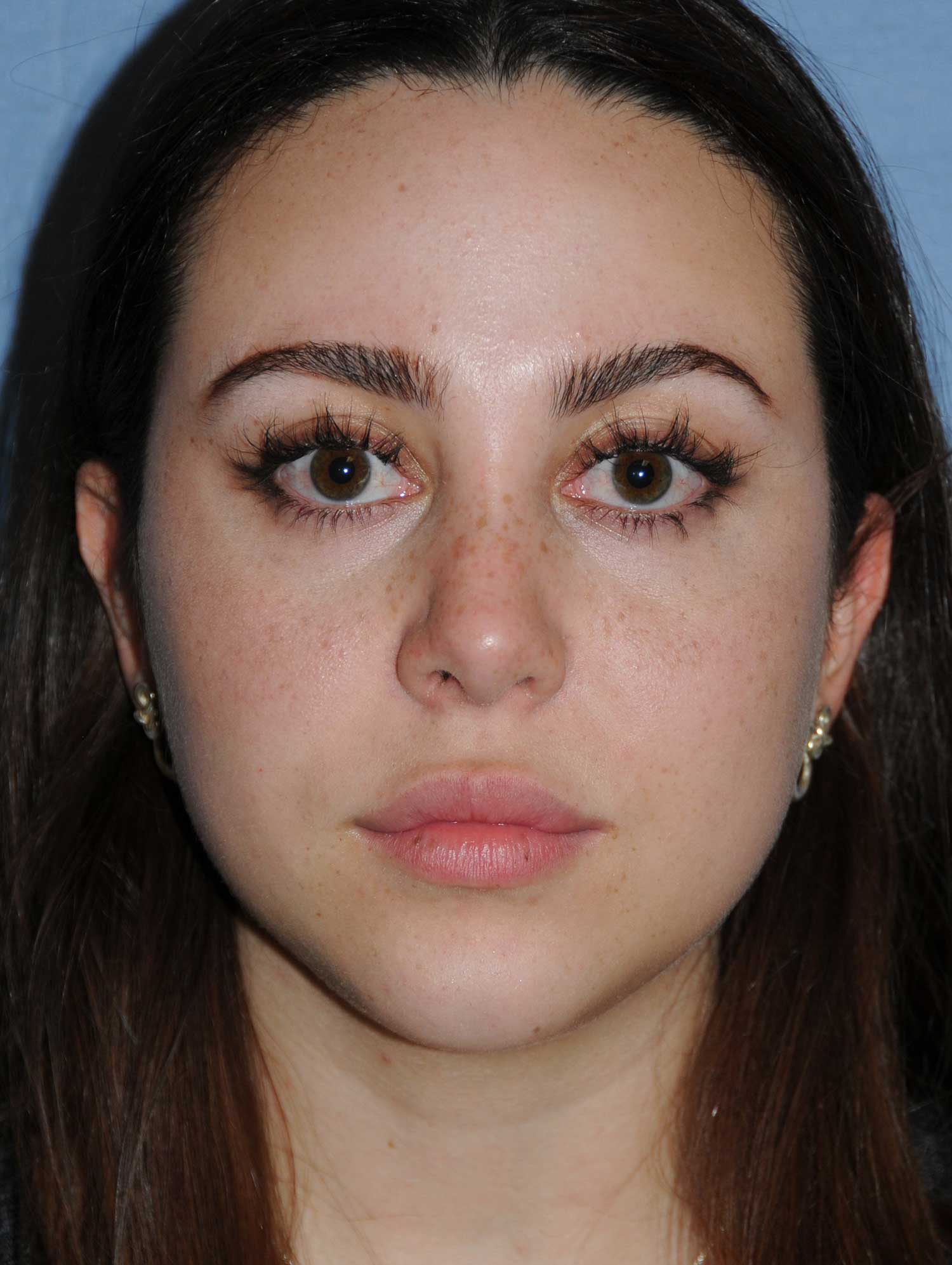 Rhinoplasty for a Bulbous Nasal Tip, Prominent Nasal Bridge, Short Nose / Columella and Lip Fat Transfer for Small Thin Lateral Upper Outer Lips After Front View