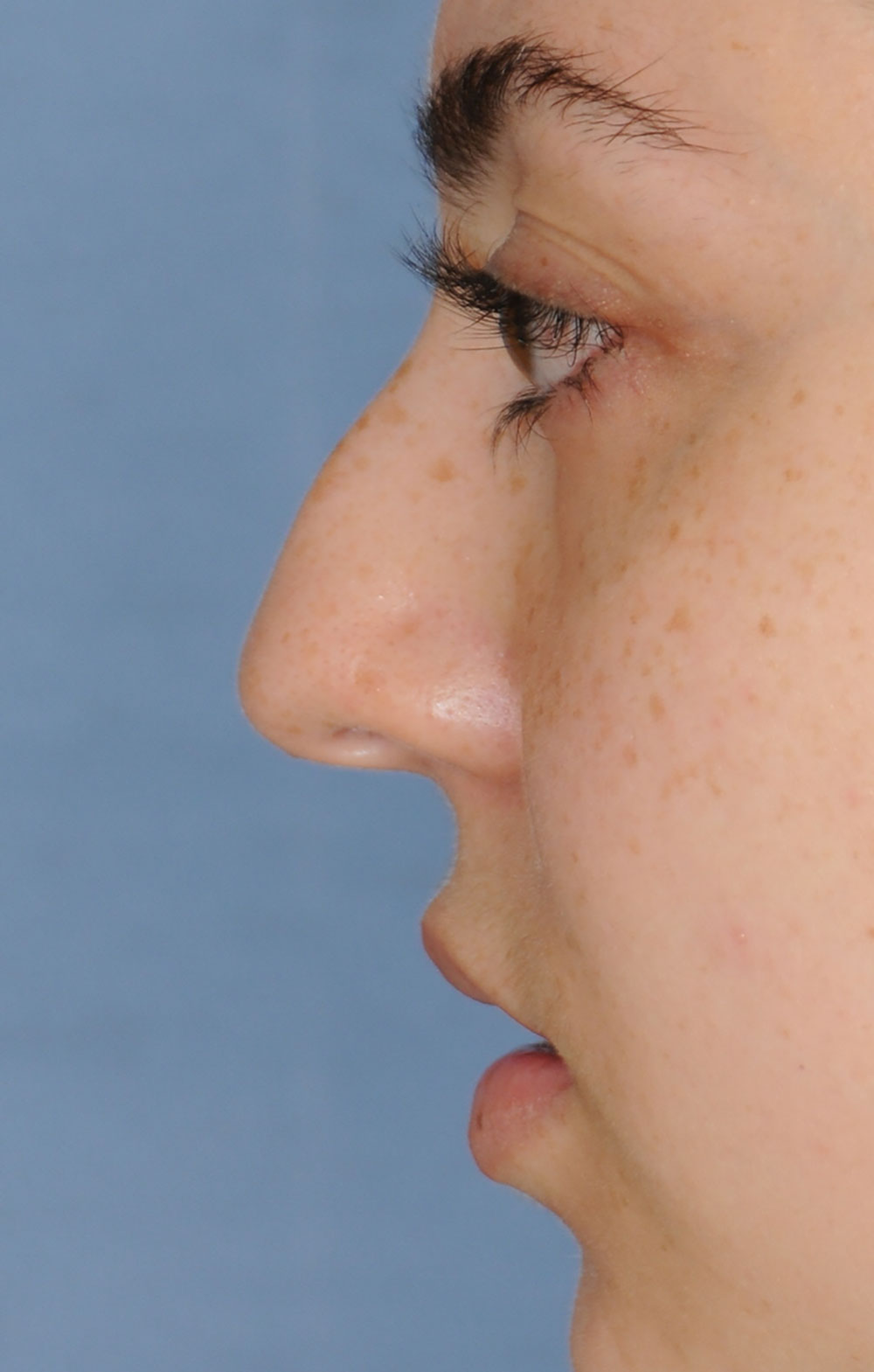 Rhinoplasty for a Bulbous Nasal Tip, Prominent Nasal Bridge, Short Nose / Columella and Lip Fat Transfer for Small Thin Lateral Upper Outer Lips Before Left Profile Close Up View
