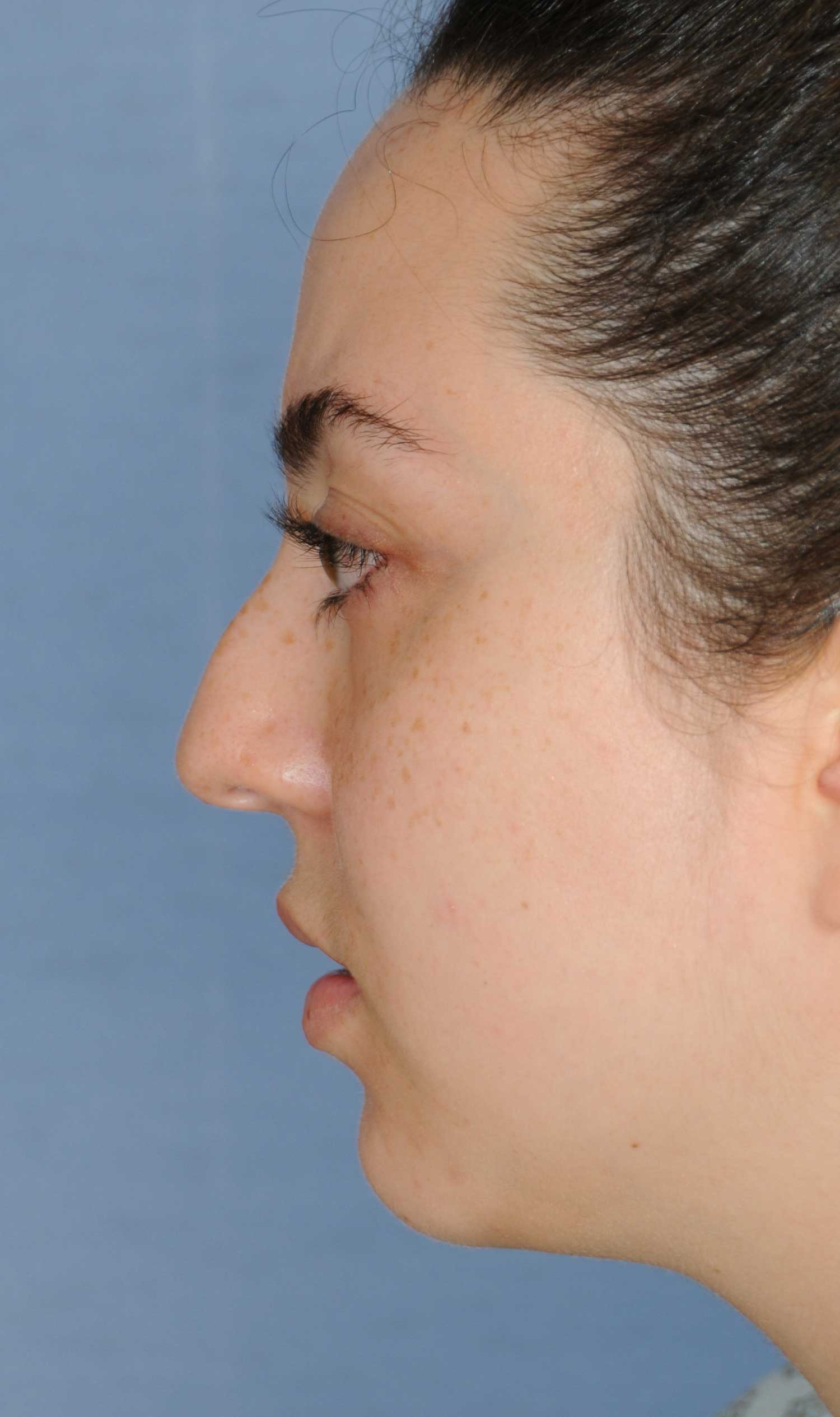 Rhinoplasty for a Bulbous Nasal Tip, Prominent Nasal Bridge, Short Nose / Columella and Lip Fat Transfer for Small Thin Lateral Upper Outer Lips Before Left Profile View