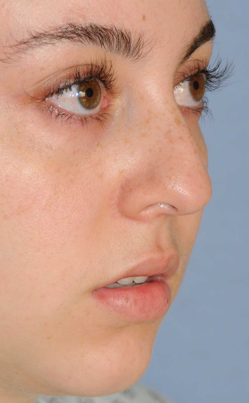 Rhinoplasty for a Bulbous Nasal Tip, Prominent Nasal Bridge, Short Nose / Columella and Lip Fat Transfer for Small Thin Lateral Upper Outer Lips Before Right Oblique View