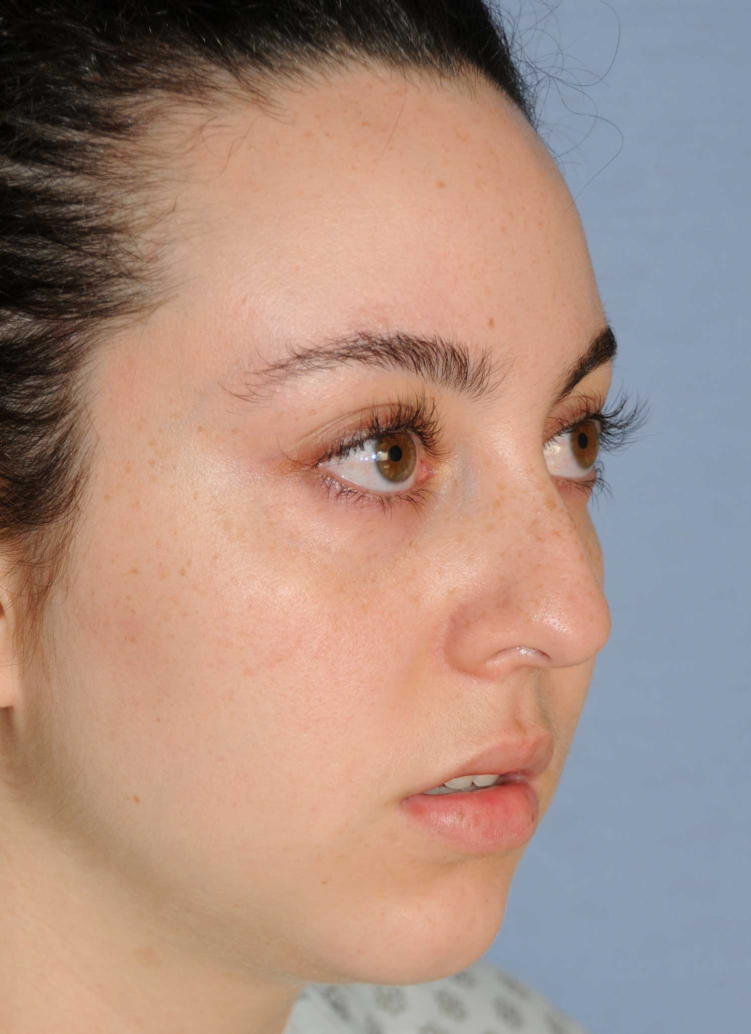 Rhinoplasty for a Bulbous Nasal Tip, Prominent Nasal Bridge, Short Nose / Columella and Lip Fat Transfer for Small Thin Lateral Upper Outer Lips Before Right Oblique Close Up View