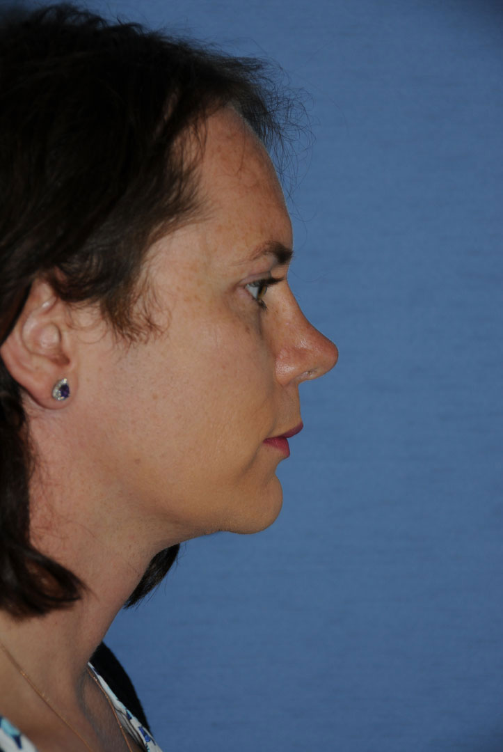 Side View Rhinoplasty for Tip Refinement, Tip Rotation, Nasal Dorsal Reduction and Chin Reduction