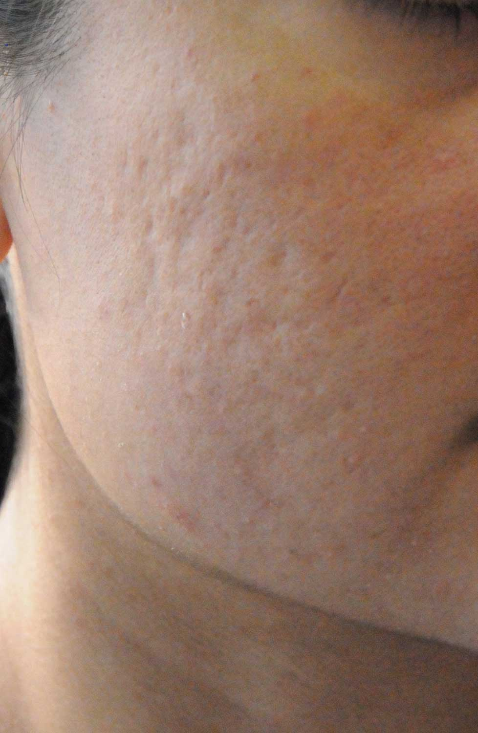 Acne Scar Vitalizer Before Treatment