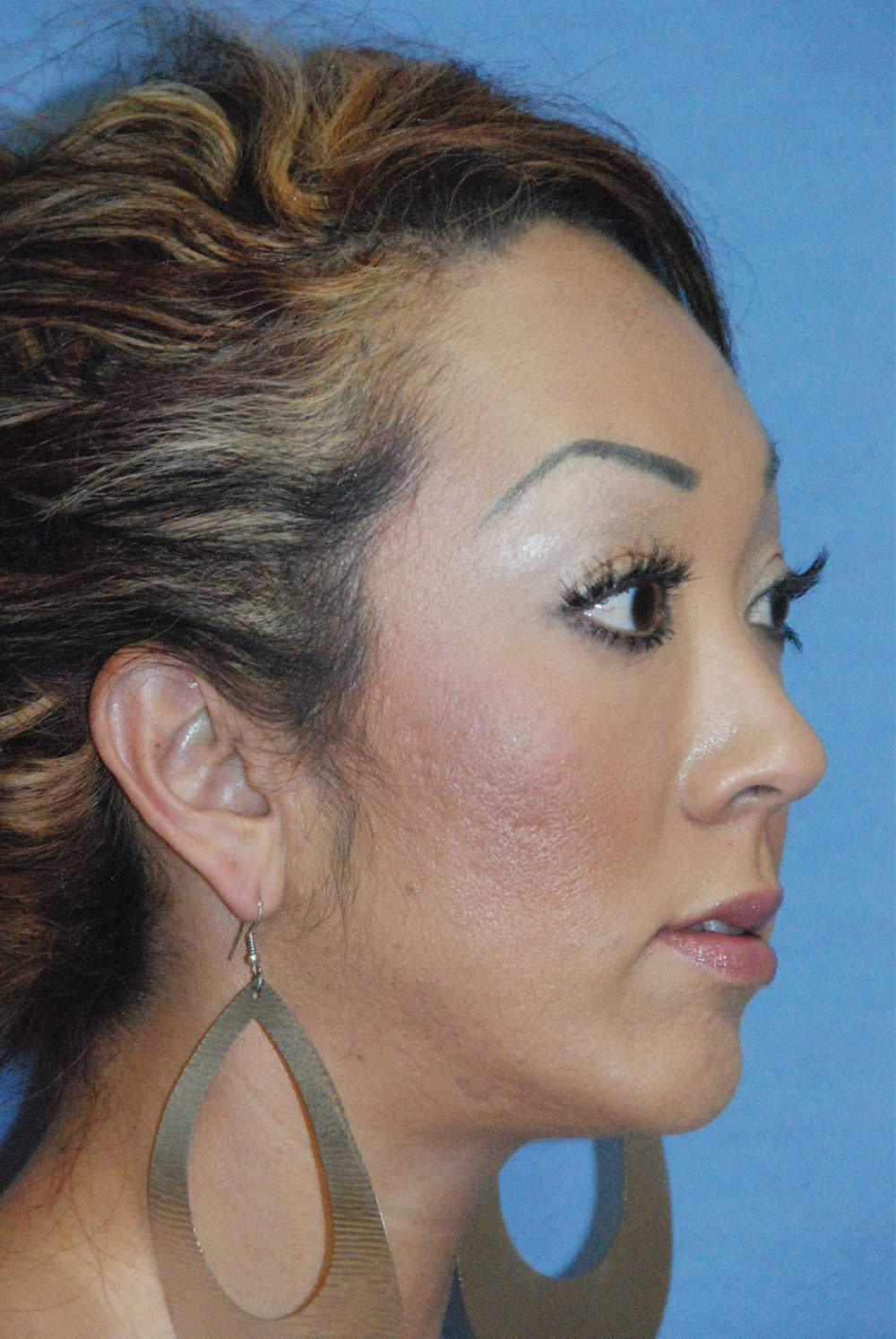 After Chin Implant for a Retruded, Small Chin and Filler Under the Eyelid and in the Cheek Region Oblique View<u><strong>for Lower Eyelid Hollowing, Bags & for a Lack of Cheek Projection</strong></u>