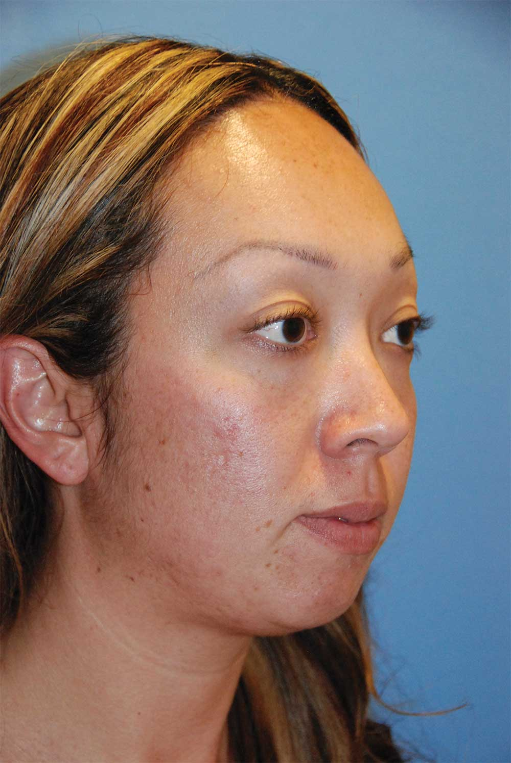 Before Chin Implant for a Retruded, Small Chin and Filler Under the Eyelid and in the Cheek Region Oblique View<u><strong>for Lower Eyelid Hollowing, Bags & for a Lack of Cheek Projection</strong></u>
