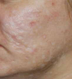 Acne Box Scar Treatment Seattle Bellevue