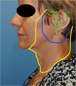 Different Variations of the FaceLift Dr Young Bellevue Washington